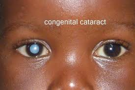 Pediatric_Ophthalmology_clip_image004