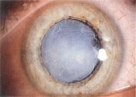 catra-eye