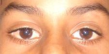 eye17b