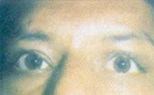 eye34