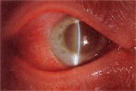 glaucoma_surgery_clip_image004