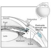 glaucoma_surgery_clip_image008