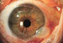 glaucoma_surgery_clip_image012