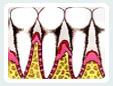 gum-disease-icn