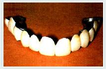 missing-teeth2